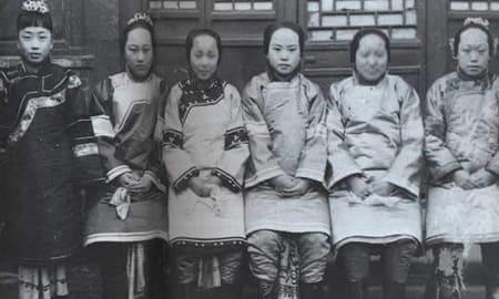 中国の悪しき風習「纏足(てんそく)」とは?変形してしまった女性の足ギャラリー