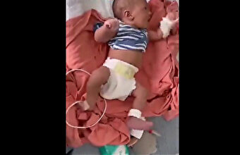 副反応?妊娠後期に母体がワクチンを摂取した結果…胎児が麻痺