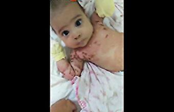 妊娠中にワクチン接種、その母乳を飲んだ子供の全身に皮膚疾患